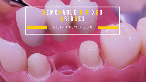 Dental Bridges-Cosmetic Dentistry Le Sueur, MN- Le Sueur Family Dental