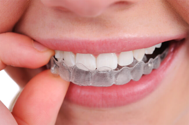 Difference b/w Night Guards & Mouth Guards, DENTAL IMPLANT   Le Sueur Family Dental, Mn