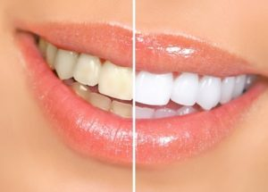 7251819 - mouth and teeth before and after whitening