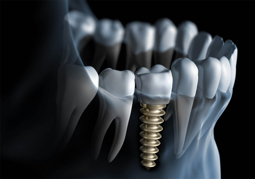 Best Dental Implants & bridges | Dentistry in Minnesota | Lesueurfamilydental