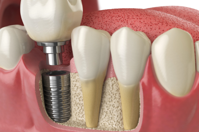 Dental Implants Necessary